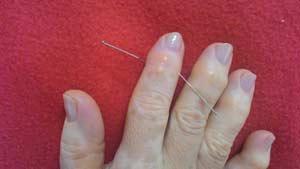 Em eventos e cursos de acupuntura, é possível apreder a tratar a artrose.