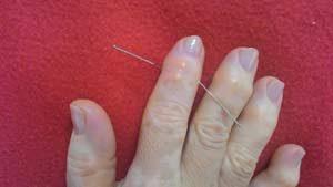 Pontos de acupuntura para artrose